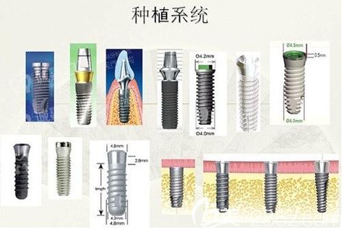 韩国奥齿泰种植体图片