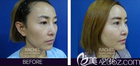 韩国蕾切尔整形外科自体脂肪面部填充案例效果对比图