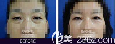 韩国蕾切尔眼底脂肪重置手术案例对比效果图