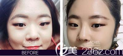 韩国蕾切尔柳承来院长misko隆鼻案例前后效果对比图