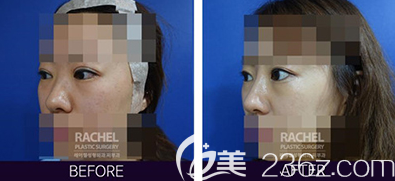 韩国蕾切尔医院柳承来双眼皮过宽无神修复案例效果对比图