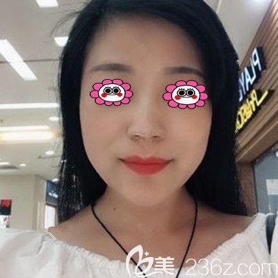 在湘潭雅美做完线雕的第三个月,趁着五一整形价格优惠又定了面部脂肪填充项目