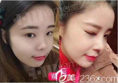 在长沙雅美做鼻整形术前术后对比照片