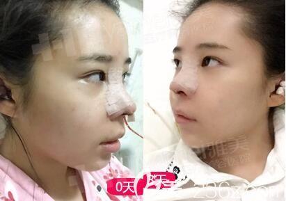 在长沙雅美做完鼻整形术后恢复中