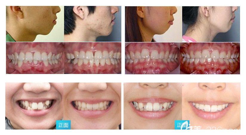 深圳拜尔口腔深覆合矫正和虎牙矫正案例图