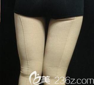 我在南宁梦想做大腿吸脂术后第7天