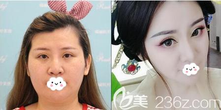 芜湖瑞丽刘传面部吸脂前后对比图
