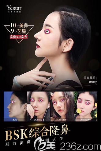 北京艺星BSK宫廷生态隆鼻案例