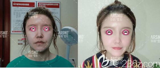 北京华韩左日宜和陈敏医生面部线雕提升案例
