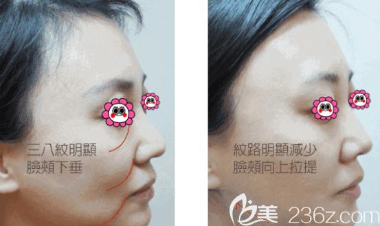 北京华韩蓝绍梓6D钻石线雕纵+横全方位逆龄案例