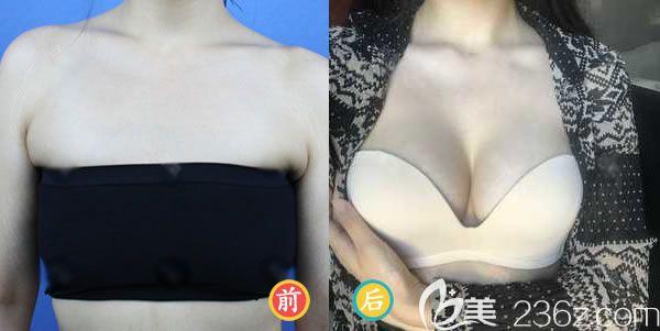 福州海峡林沸腾医生做隆胸案例