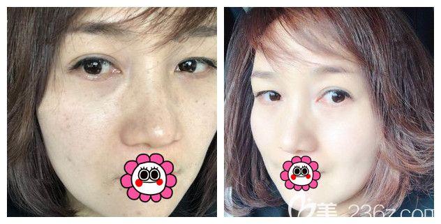 36岁大眼袋面诊昆山铂特丽陈海朋医生不推荐外切和内切手术去眼袋,设计了眶隔脂肪释放同时改善凹陷泪沟