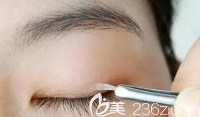 贴双眼皮贴是导致多眼皮的原因之一