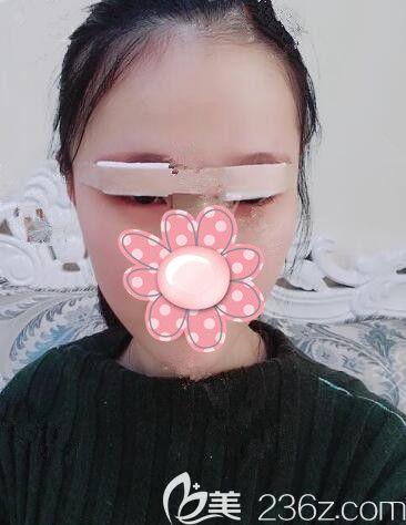 刚做完韩式精切双眼皮术后即刻眼部肿胀