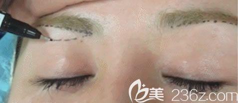 提眉切眉手术多少钱?湖州尚丽整形院长亲诊韩式微创切眉术价格5800元起