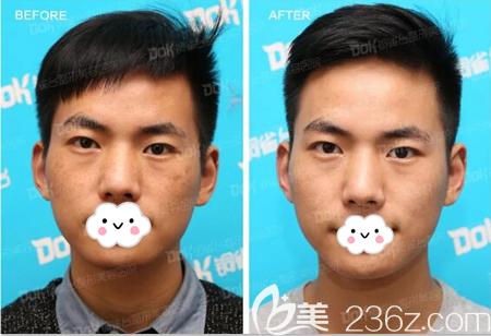 成都铜雀台皮秒祛斑术后效果对比图