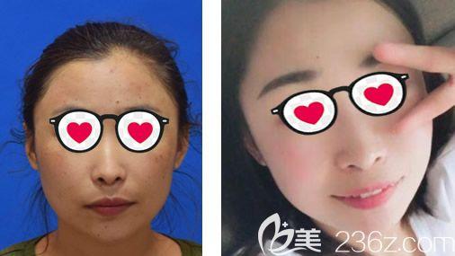 内蒙古京美于晓昆激光祛斑案例