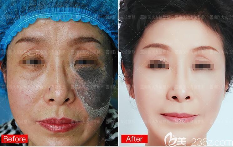 南京医科大学友谊整形外科医院扬州门诊部去褐青色痣前后对比