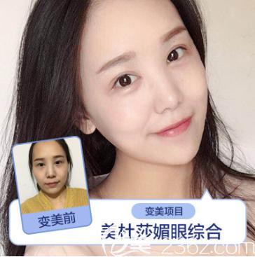 北京艺星美杜莎9度明星眼优惠中!美杜莎媚眼综合五项价格12800元起有案例