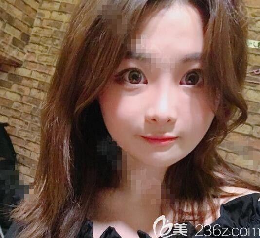 四方脸的我在韩国布拉德整形医院边圣洙做了双鄂+轮廓艾玛小脸有点接受不了