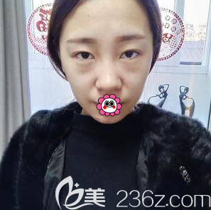 北京长虹整形美容医院赵宏伟术前照片1