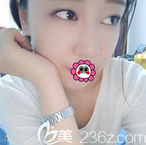 北京长虹整形美容医院赵宏伟术后照片1