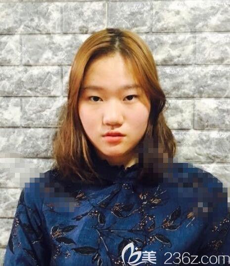 韩国秀美颜(TOP FACE)整容外科任荣旻术前照片1