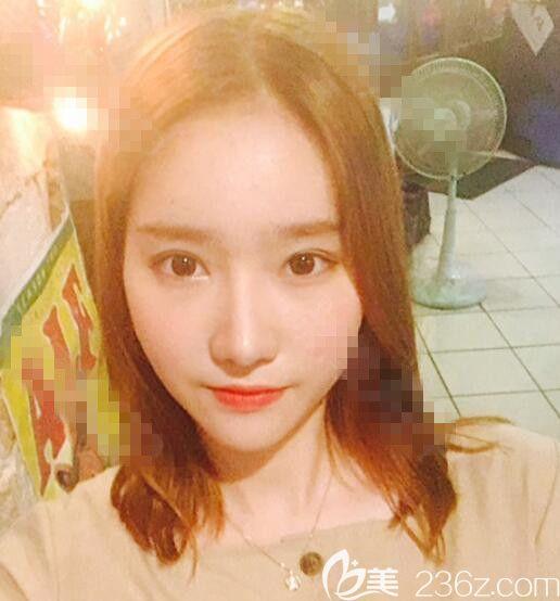 韩国秀美颜(TOP FACE)整容外科任荣旻术后照片1