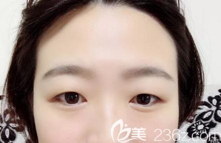 济南宝琳娜医疗美容诊所逄宝峰术前照片1