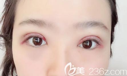 双眼皮术后第7天