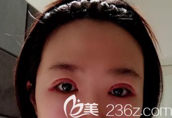 双眼皮术后一周
