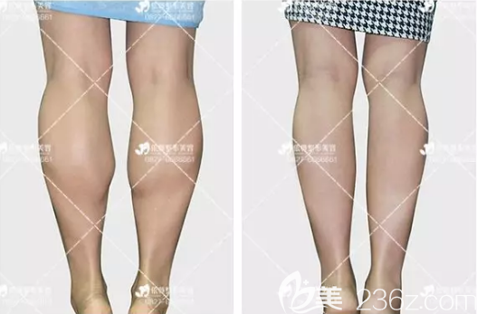 巴中依韩医疗美容诊所胥宇术后照片1