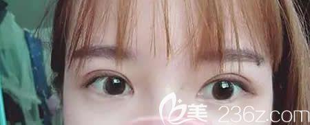 圆脸的我在宜春天泽医院找史希杰做了平行双眼皮,朋友都说形状和脸型格外的搭