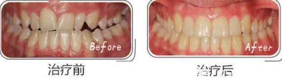 上海中博口腔管景红对刃颌矫正前后对比照