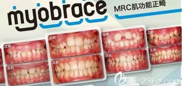 上海中博口腔管医生儿童MRC肌功能矫正案例图