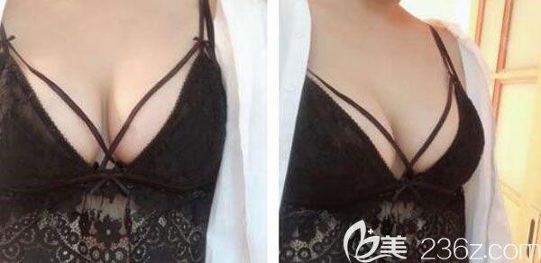 昆明华美美莱美容医院夏国兴术后照片1