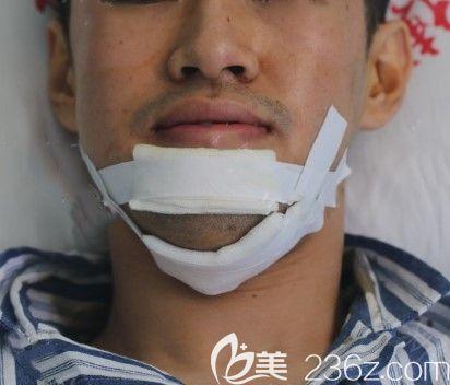 在上海中博口腔让刘彦普教授做完正颌手术第三天