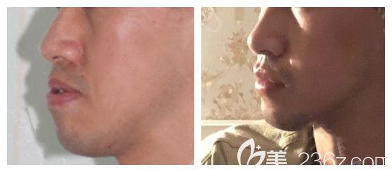 上海中博口腔刘彦普正颌手术案例对比图