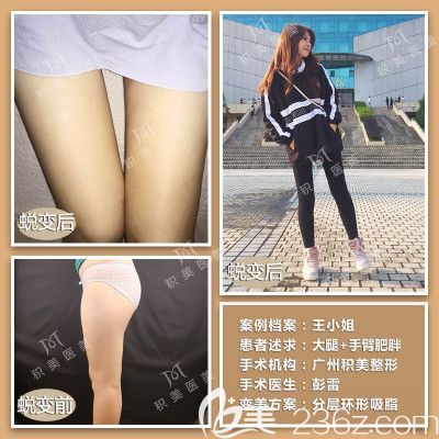 广州积美彭雷大腿吸脂案例