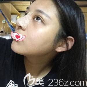 雅芳亚整形医生孟祥重为我做鼻综合术后鼻子肿胀