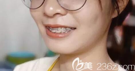 看到我在上海臻威口腔矫正龅牙+深覆盖1年的效果图,我不后悔没有选择上海九院做正畸