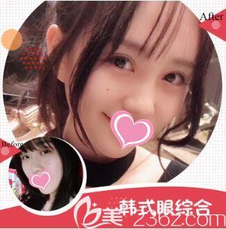 上海瑰康眼综合真人案例图2