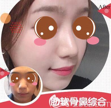 上海瑰康肋软骨鼻综合真人案例