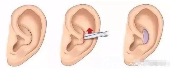 耳软骨隆鼻取骨位置
