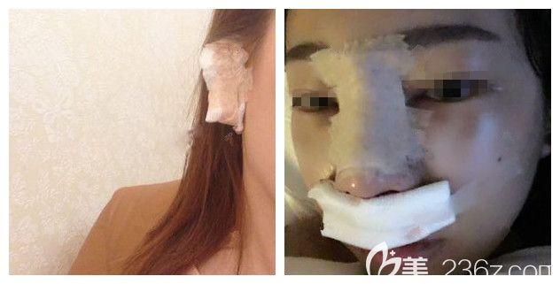 刚做完自体耳软骨鼻综合术后即刻效果