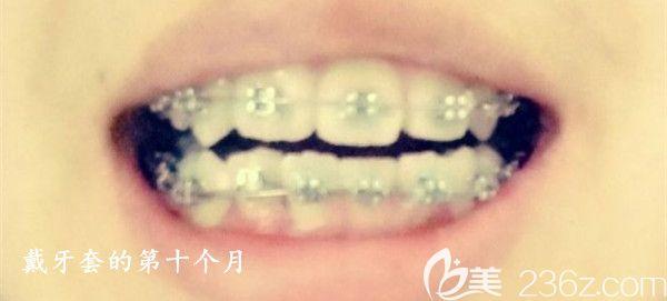 侧切牙内凹+牙齿拥挤,记录我在常州北极星口腔正畸前后的反差