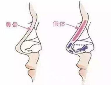 鼻整形假体放置位置介绍