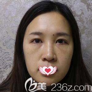 邢台伊美医疗美容诊所李学英术前照片1