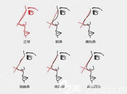 各种鼻部问题示意图