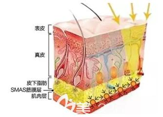 埋线提升对皮下真层的作用效果